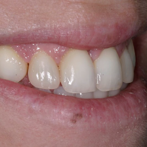 braces for gaps after