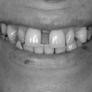 braces for gaps before