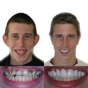 neglected smile makeover - before and after