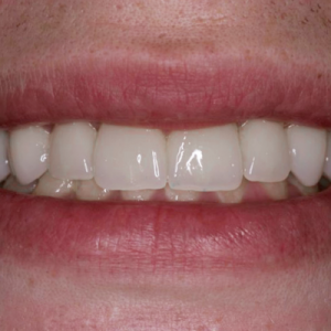 neglected smile makeover -  after