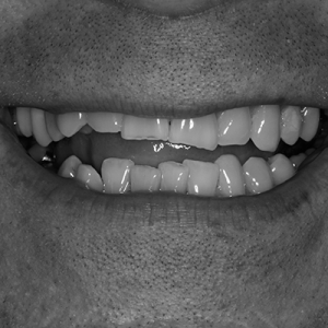 veneers for worn teeth - before