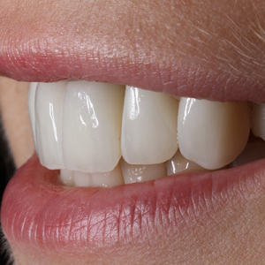 invisible braces, crowns, veneers and implants after