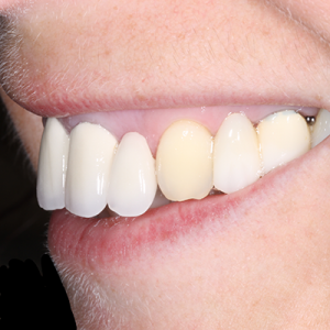 invisible braces, crowns, veneers and implants before