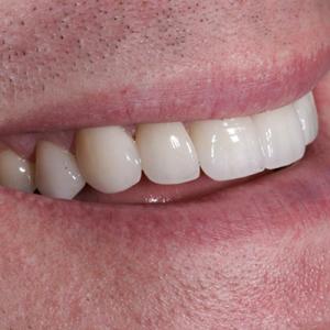 veneers for bruxism teeth grinders - after