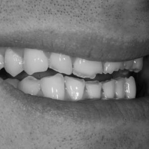 veneers for bruxism teeth grinders - before