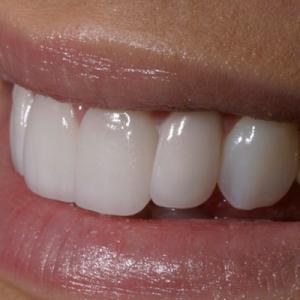 veneers for crooked teeth - after