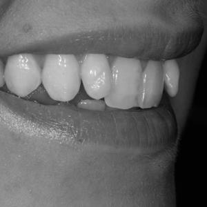 veneers for crooked teeth - before