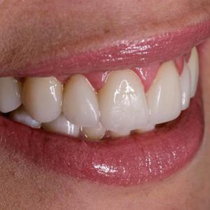 veneers for gummy smiles - before
