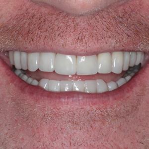 veneers for worn teeth - after